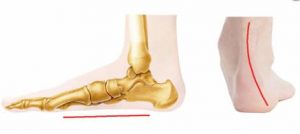 flat feet and ankle | Arana Hills Physiotherapy