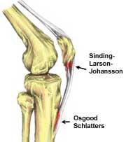 Osgood schlatters | Arana Hills Physiotherapy