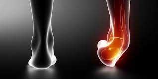 ankle sprains | Arana Hills Physiotherapy