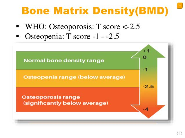 Osteoporosis and your T score   Arana Hills Physiotherapy