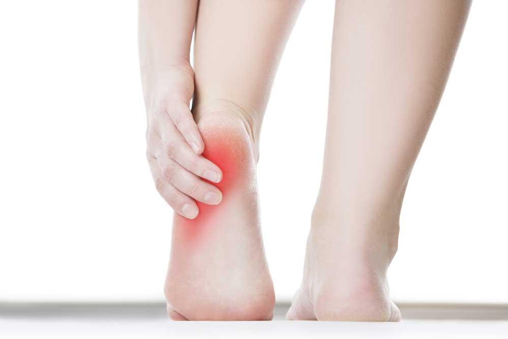 heel pain and plantar fasciitis | Arana Hills Physiotherapy